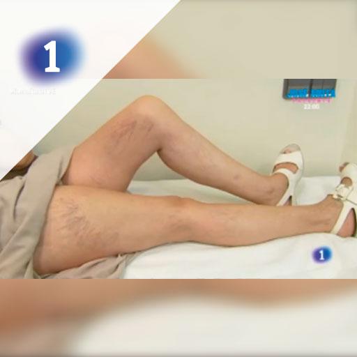 Tratamiento Varices - Las mañanas de la 1