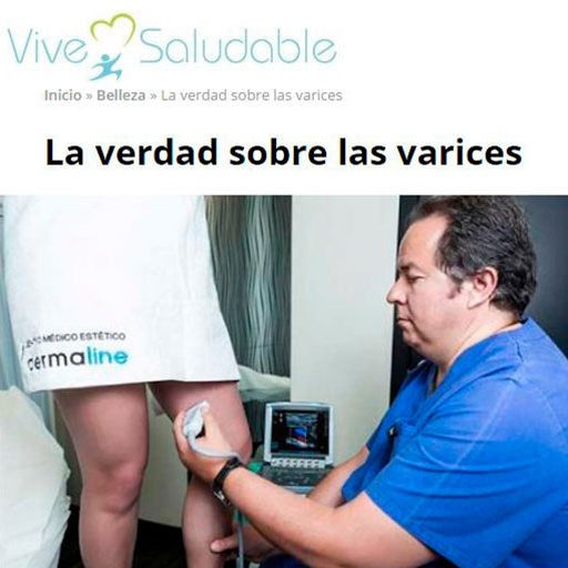 Mitos y Verdades sobre Varices - Vive Saludable