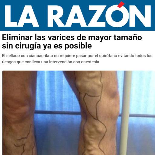 ELIMINA LAS VARICES SIN CIRUGÍA - LA RAZÓN
